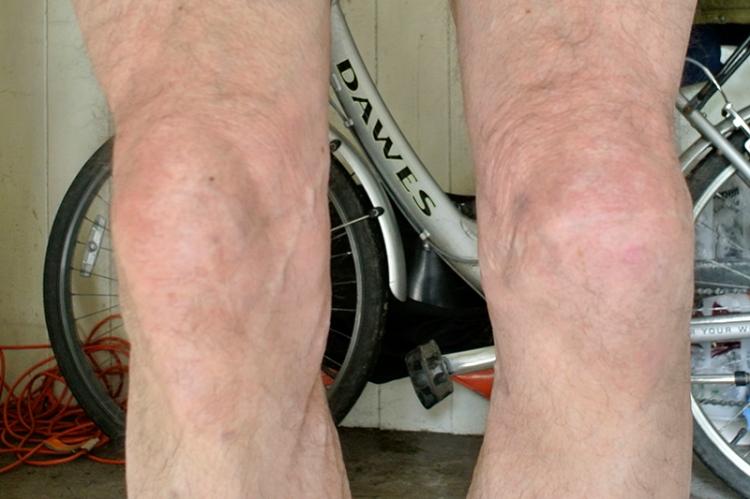 Pair of knees